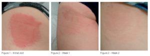 episcyn_Scar-treatment