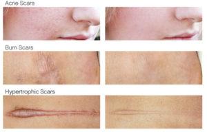 epicyn_Scar-treatment