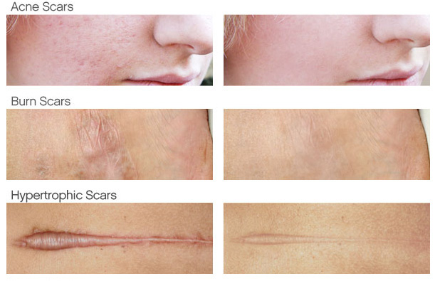 Silicone sheets scars before and after